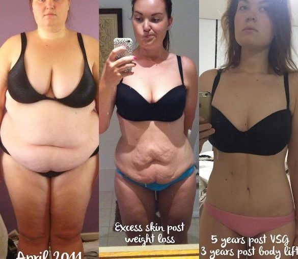Great gastric sleeve success story! Read for and after the skills of transformation …